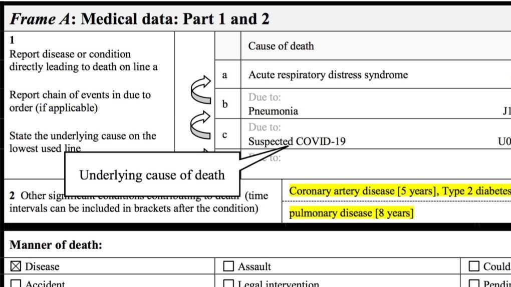 Formulaire international de certificat médical de cause de décès - Suspicion de COVID-19